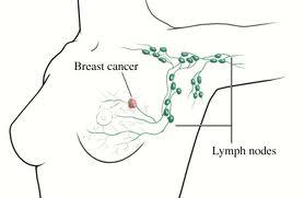 Linfedema, cáncer de mama ¿Cómo evitarlo?